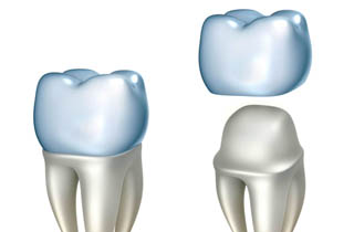 crowns to restore tooth