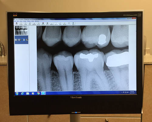 advanced digital dental xray